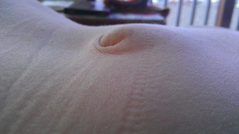 Λαπαροσκοπική αντιμετώπιση της κήλης με χρήση πλέγματος