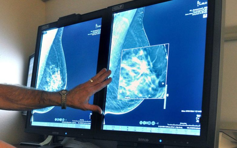 Νέο τεστ αίματος ανιχνεύει εγκαίρως υποτροπή καρκίνου