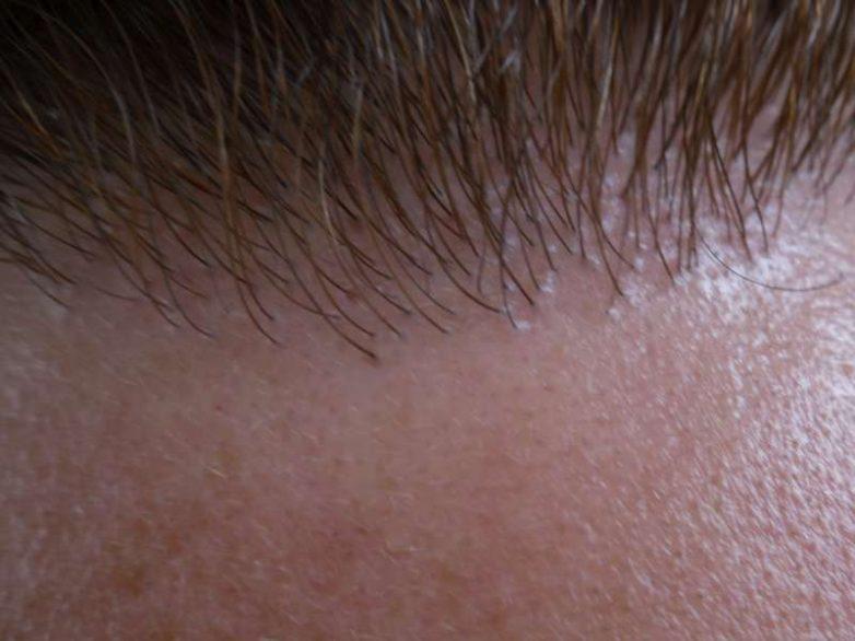 Αλματώδης η εξέλιξη στη μεταμόσχευση μαλλιών!