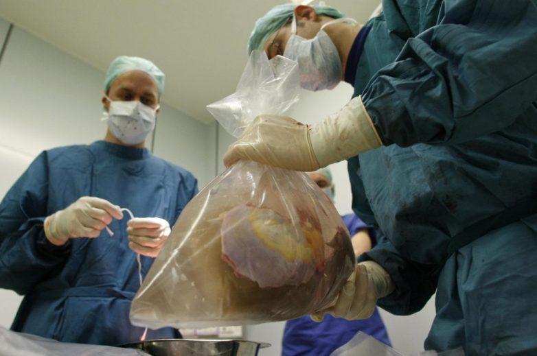 Δωρεά οργάνων 22χρονου σε 45χρονη νεφροπαθή Βολιώτισσα