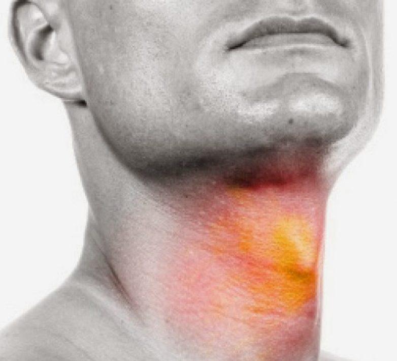 Φρένο στον καρκίνο του λάρυγγα βάζει η διακοπή του καπνίσματος!