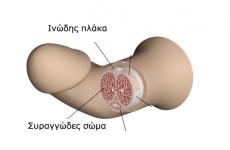 Αυξητική τάση στη νόσο στράβωμα και πόνος πέους