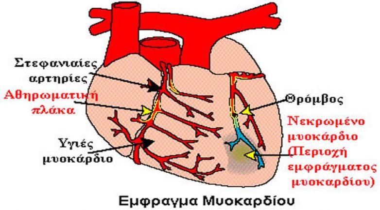 Η πρόληψη του εμφράγματος μυοκαρδίου το θέμα  διάλεξης του Ινστιτούτου Δημόσιας Υγείας