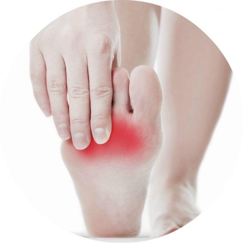 Λύση στο σύνδρομο Morton΄s (μούδιασμα δακτύλων και πόνος στο πέλμα) δίνει το χειρουργείο