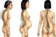 Σκολίωση: Μπορούν να αποφευχθούν οι χειρουργικές επεμβάσεις;