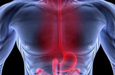 Γαστροοισοφαγική παλινδρόμηση: Πότε είναι απαραίτητη η εγχείρηση