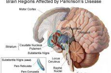 Πάρκινσον: Απλή βιοψία δέρματος εντοπίζει τη νόσο πριν εκδηλωθεί