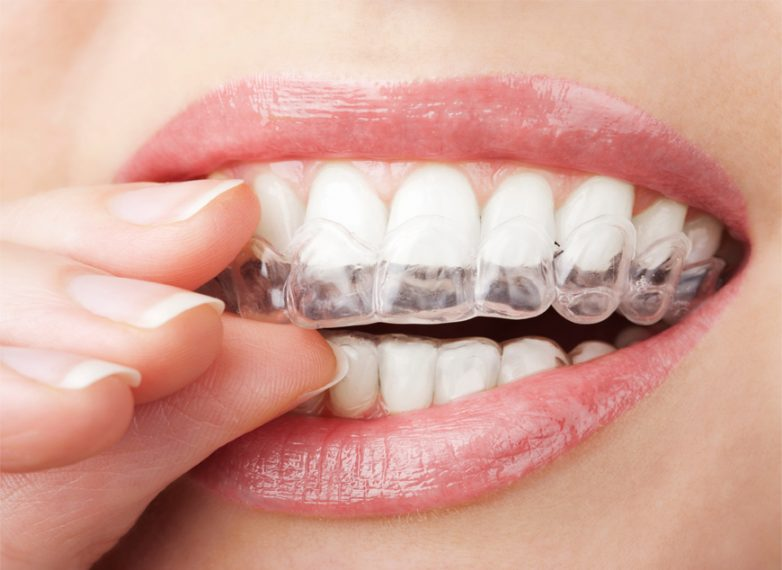 Αόρατη ορθοδοντική: Ισιώστε τα δόντια σας εύκολα και γρήγορα