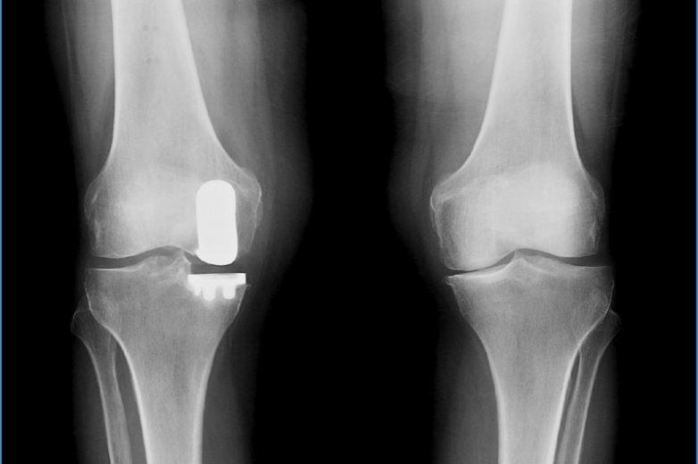 Ρομποτική Χειρουργική: απόλυτα επιτυχής η εφαρμογή της στην ολική αρθροπλαστική ισχίου και γόνατος