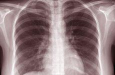 «Η Φυματίωση σήμερα», εκδήλωση στην Ιατρική Σχολή Λάρισας