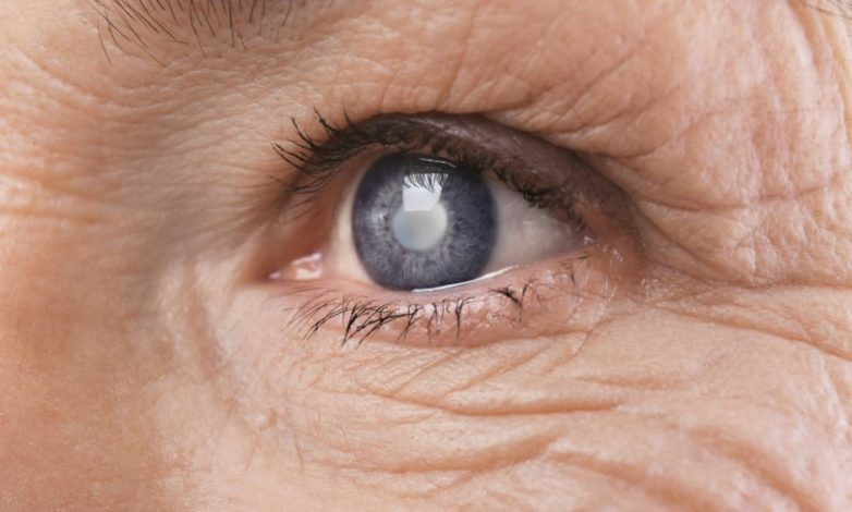 Η αφαίρεση καταρράκτη βελτιώνει την όραση αλλά και τον ύπνο