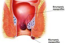 Ριζική θεραπεία των αιμορροΐδων