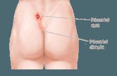 Κύστη κόκκυγα: Μόνιμη λύση, χωρίς μολύνσεις και επανεμφάνιση προσφέρει η χρήση laser