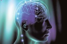 Ανεύρυσμα εγκεφάλου: Όσα (δε) θέλετε να γνωρίζετε