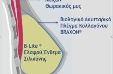 Καινοτόμος μέθοδος ιατρών για την άμεση αποκατάσταση μαστού
